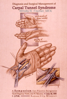 Carpel tunnel surgery illustration