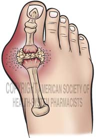 Gout of the Great Toe
